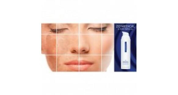 Профессиональное отбеливание кожи в домашних условиях