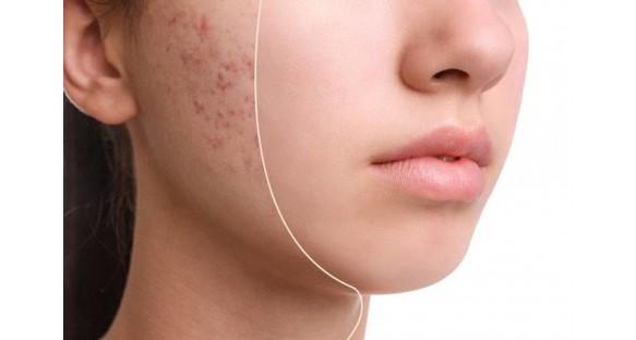 Подростковое акне. Как избавиться от проблем с кожей с программой «5 лосьонов +»